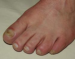 Народные средства лечения пяточной шпоры, грибка ногтей, вросшего ногтя