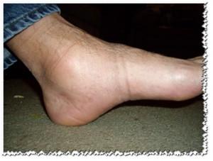 отеки на ногах