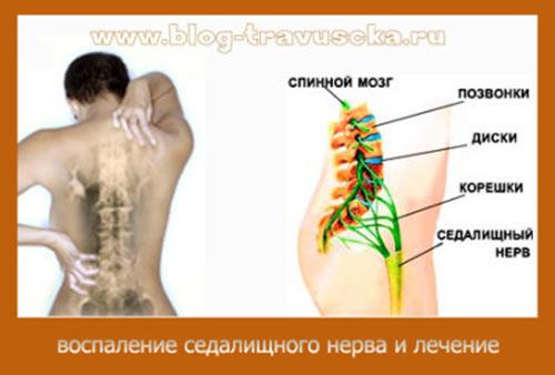 защемление седалищного нерва лечение народными средствами.