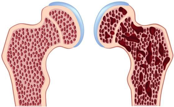 Этот страшный диагноз - остеопороз