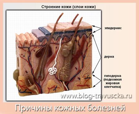 Болезни кожи фото