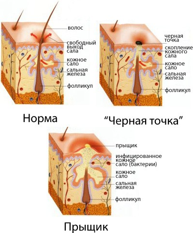 Причины кожных болезней