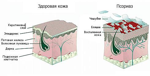 Пермь нано гель от псориаза