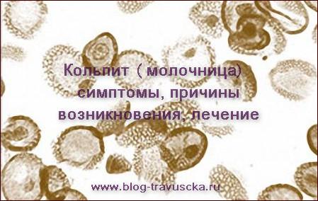 Молочница (кандидоз). Симптомы и лечение в домашних условиях