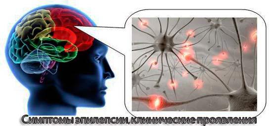 Эпилепсия симптомы и причины