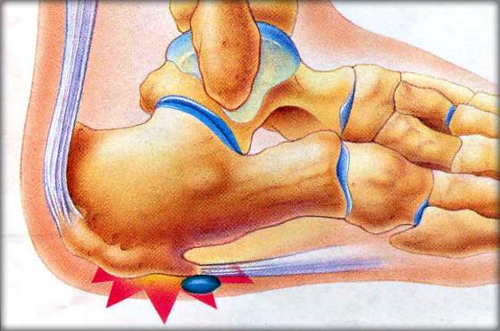 Почему болят пятки и как лечить народный метод