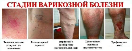 Как лечить варикоз на ногах в домашних условиях у женщин и мужчин