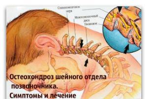 Как я справляюсь с симптомами шейный остеохондроз