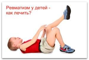 Ревматизм симптомы и лечение