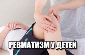 ревматизм у детей симптомы и лечение