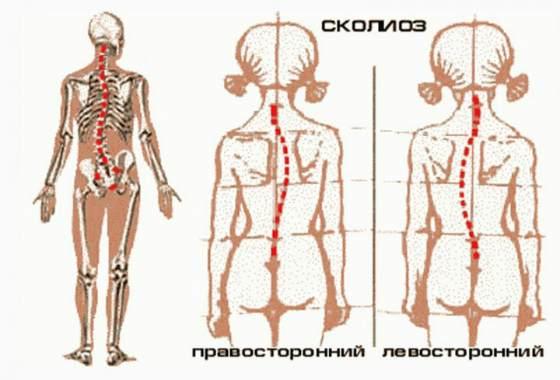 Как избавиться от сутулости упражнения для спины