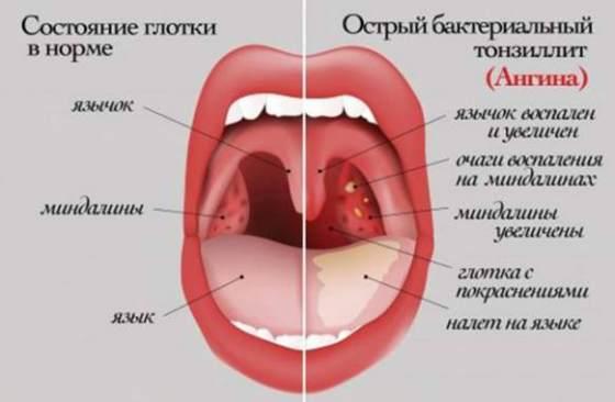 Токсидермия у детей фото симптомы