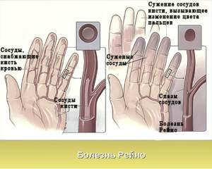 Эффективные средства лечения диабета