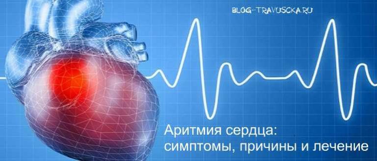 Проявление аритмии сердца