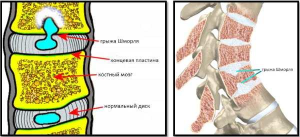 Межпозвоночная грыжа шеи