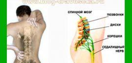 Что делать при болях в спине и защемлении седалищного нерва?