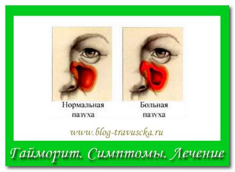 гайморит симптомы лечение