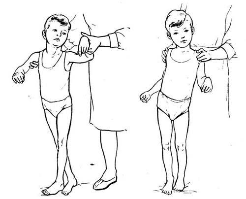 разгибательные упражнения