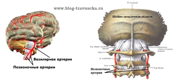 Шейный остеохондроз артерии