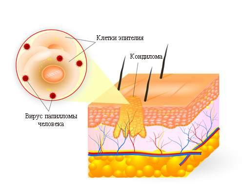 virus papillomi tipi
