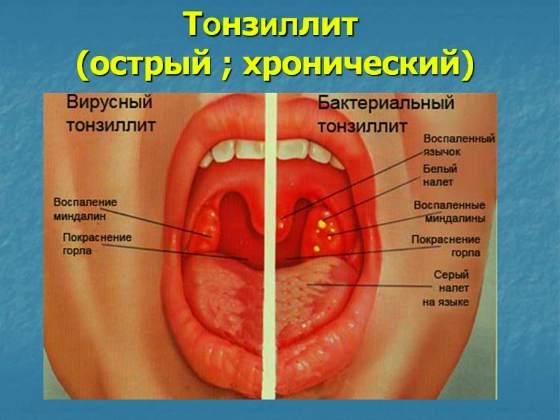 Хронический тонзиллит у ребенка