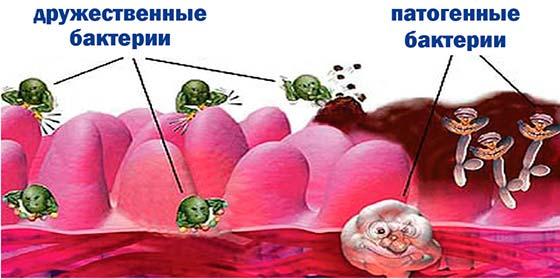 Микрофлора влагалища