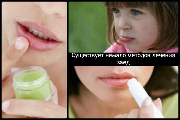 В уголках губ аллергия