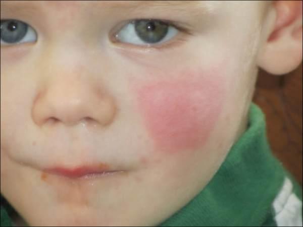 Аллергия на спине на море